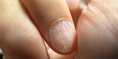 unghie si sfaldano