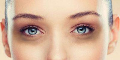 perchè compaiono le occhiaie