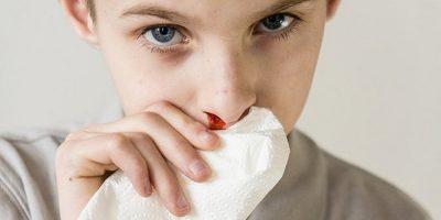 sangue dal naso dei bambini perchè