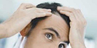capelli-che-cadono-a-causa-dello-stress